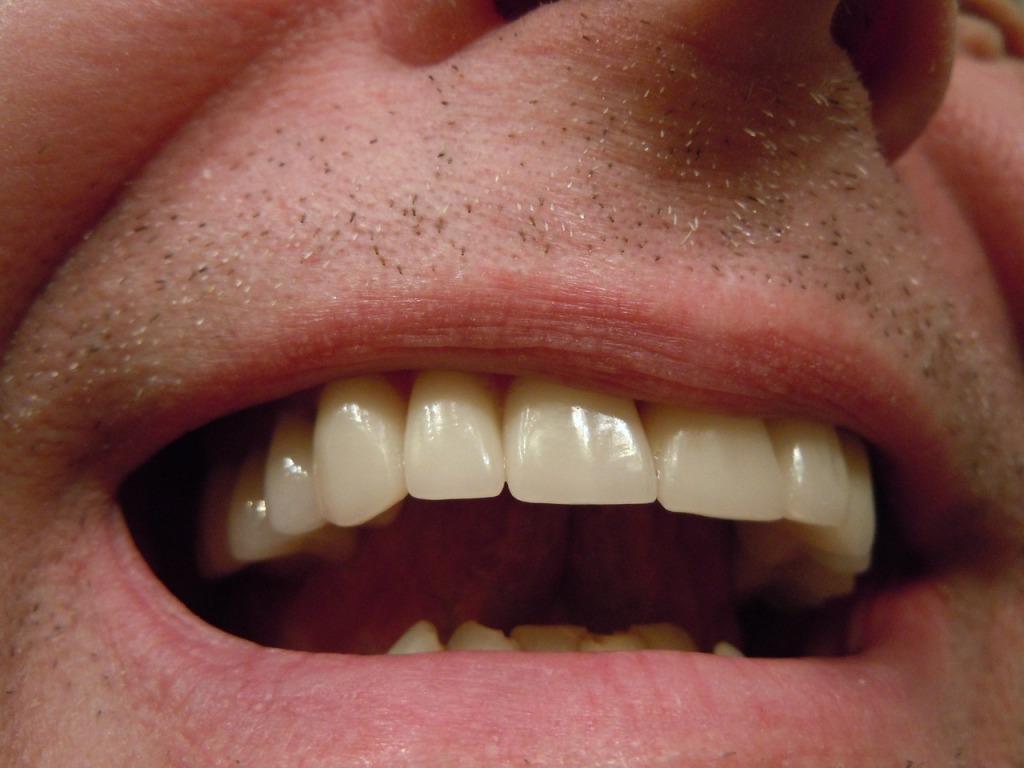 teeth-414489_1280
